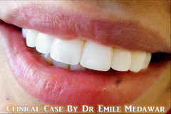 Hollywood Smile Beirut Lebanon Style Dental Clinic  (26) (Style Dental Clinic Beirut Lebanon) Tags: smile by dr style dental hollywood clinic emile medawar
