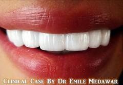 Hollywood Smile Beirut Lebanon Style Dental Clinic  (6) (Style Dental Clinic Beirut Lebanon) Tags: style dental hollywood clinic veneers styledentalclinic