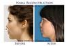 Nasal-Reconstruction-NJ-before-after-photo-002 (DrMonicaTadros) Tags: plasticsurgery surgeon after before female patient reconstruction nasal