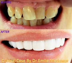 Pure full ceramic Hollywood smile5 (Style Dental Clinic Beirut Lebanon) Tags: lebanon dental clinic beirut dentist hollywoodsmile venners