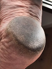 heel (danragh) Tags: dirty feet heel tallone piede