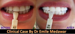 white teeth lebanon style dental clinic beirut lebanon (teeth whitening lebanon) Tags: lebanon laser beirut dentist perfectteeth brightsmile teethwhitening toothwhitening whitesmile whitestteeth styledentalclinic