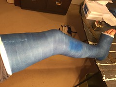 IMG_9059 (stlcrestfan) Tags: llc cast long leg broken