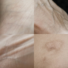 Epidermis (vilyviane) Tags: me self foot skin wrist veins hip scar tendons epidermis