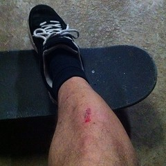 "ollie to shin plant. hurts pretty good. • <a style=""font-size:0.8em;"" href=""http://www.flickr.com/photos/99295536@N00/8138636738/"" target=""_blank"">View on Flickr</a>"