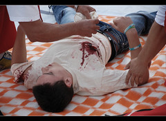 Face of the terror (Dimityr Chobanov) Tags: man face blood poor bad down luck terror