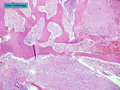 Qiao's Pathology: Pituitary Adenoma (Jian-Hua Qiao, MD, FCAP) Tags: microscopic pathology qiaos pituitary adenoma