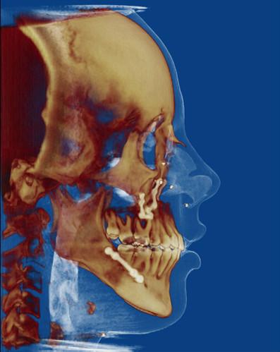4. Ensanchamiento de la vía aérea en la paciente de la foto nº 3 después de cirugía ortognática de avance mandibular y maxilar