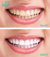 2015-0419-yeelow-teeth-#cosdentbyslc-#makeoveryoursmile-#slcgroup (Dental clinic in Bangkok) Tags:             cosdentbyslc dental clinic bangkok