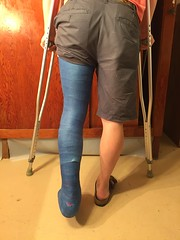 IMG_9037 (stlcrestfan) Tags: llc cast long leg broken