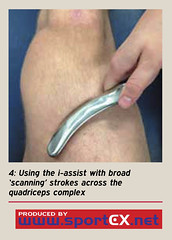 Using the i-assist with broad 'scanning' strokes across the quadriceps complex (sportEX journals) Tags: injury massage therapy dynamics rehabilitation sportex