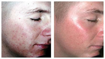 Best Acne Scar Treatment Removing Scars