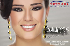 Lumineers Lebanon 1 (Ferrari Dental CLinic Lebanon) Tags: lebanon smile cam teeth dental hollywood laser makeover clinic whitening beirut dentist dentistry cad cosmetic crowns implants zirconium veneers cerec emax lumineers