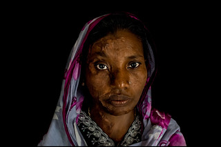 0012_acid-attack-survivor_20130314_7790