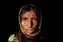 0016_acid-attack-survivor_20130319_8773 (Zoriah) Tags: pakistan portrait color face cambodia acid victim attack photojournalism documentary burn crime bangladesh survivor reportage photojournalist