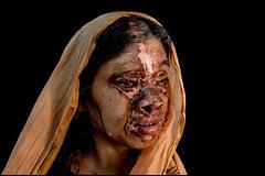 0004_acid-attack-survivor_20130319_8575 (Zoriah) Tags: pakistan portrait color face cambodia acid victim attack photojournalism documentary burn crime bangladesh survivor reportage photojournalist disfiture