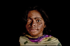 0014_acid-attack-survivor_20130317_8309 (Zoriah) Tags: pakistan portrait color face cambodia acid victim attack photojournalism documentary burn crime bangladesh survivor reportage photojournalist disfiture