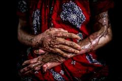 0005_acid-attack-survivor_20130315_8035 (Zoriah) Tags: pakistan portrait color face cambodia acid victim attack photojournalism documentary burn crime bangladesh survivor reportage photojournalist disfiture