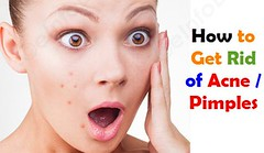How to Get Rid of Acne or Pimples (eInfoDesk) Tags: how get rid pimples naturally acne home treatment for or what is causes types natural remedies treat cure therapy tips make your skin clean glorious uneven face reduce its redness role