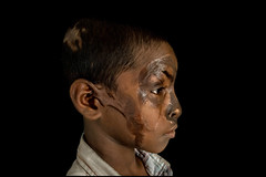 0010_acid-attack-survivor_20130314_7817 (Zoriah) Tags: pakistan portrait color face cambodia acid victim attack photojournalism documentary burn crime bangladesh survivor reportage photojournalist disfiture