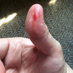 Sliced Thumb with Fork Tines (stevendepolo) Tags: sliced thumb with fork tines