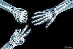 Rock Paper Scissors (Fer Gregory) Tags: skeleton hands photographer hand iii xray rockpaperscissors setup behindthescenes mexicano fotografo skelleton strobist fernandogregory lumopro removedfromstrobistpool 5dmarkiii incompletestrobistinfo seerule2 lp160 fergregory cactusv5 canon5dmark3