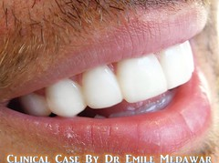 Hollywood Smile Beirut Lebanon Style Dental Clinic  (30) (dentistbeirutlebanon) Tags: lebanon smile dr style dental hollywood clinic beirut dentist emile medawar
