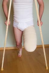 20120922-207 (dimka.drugoy) Tags: stump crutches bandage amputee pretending biid