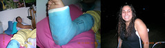dana49_joined (cb_777a) Tags: broken leg ankle foot cast crutches toes usa