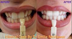 Home teeth whitening lebanon style dental clinic beirut lebanon (teeth whitening lebanon) Tags: lebanon laser beirut dentist perfectteeth brightsmile teethwhitening toothwhitening whitesmile whitestteeth styledentalclinic
