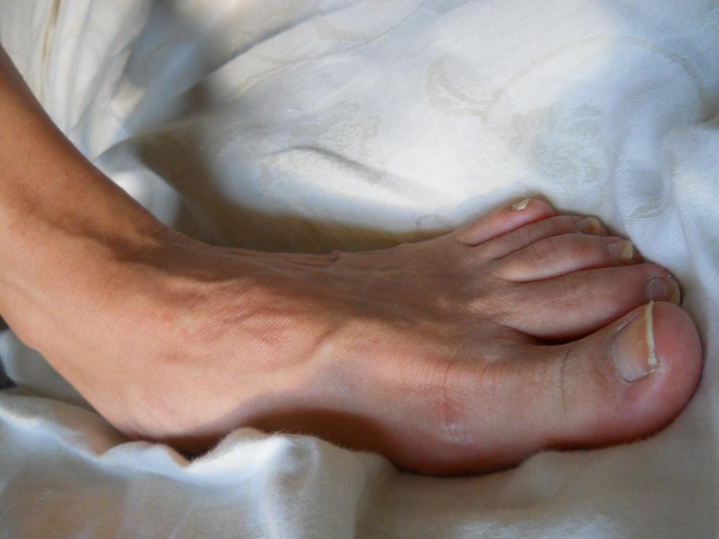 Foot fetish famous-1571