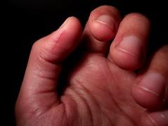 Thumb-knife incounter. Day 2 (amikikaro) Tags: thumb cut wound