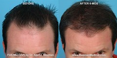 8450709782 8ecb264148 m FUE   Follicular Unit Extraction with NeoGraft