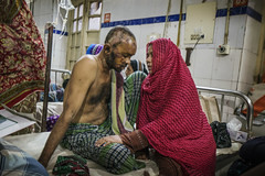 Couple at Ward 103 Dhaka Medical College Hospital (shahidul001) Tags: tampaco fire industry hospital medicalcare treatment injury labour law regulation bangladesh tongi