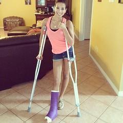 3ec65506cd0d11e1a23c22000a1c9e05_7 (Castix) Tags: cam cast slc llc crutch slwc llwc