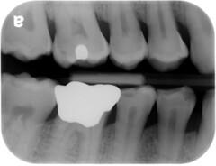 x-ray (jasonwoodhead23) Tags: teeth dental xray