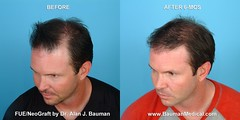 8450710178 28380392db m FUE   Follicular Unit Extraction with NeoGraft