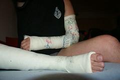 been en arm gips 07122012 019 (Bracecaster1) Tags: broken arm lac wrist slc ankle combo legcast armcast lats beenenarmgips07122012