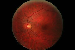 my_left_eye (brum) Tags: red eye nature ball blood eyes medical opticnerve cerchio retina optic ophthalmologist tondo fovea eyesball retinalpictures anatomyoftheretina