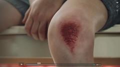 Saliva (PinziPie) Tags: sfxmakeup sfxmakeupartist sfxartist sfxscrapedknee sfxgrazedknee sfx fakeblood grazed kneee grazedknee