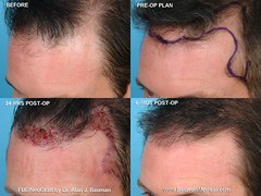 8449625081 280c2c3178 m FUE   Follicular Unit Extraction with NeoGraft