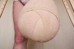 20130302-589 (dimka.drugoy) Tags: stump crutches bandage amputee pretending biid