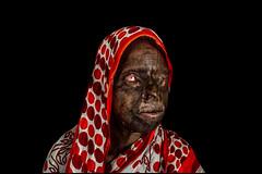 0001_acid-attack-survivor_20130314_7701 (Zoriah) Tags: pakistan portrait color face cambodia acid victim attack photojournalism documentary burn crime bangladesh survivor reportage photojournalist disfiture