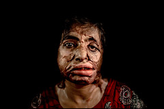 0002_acid-attack-survivor_20130315_8028 (Zoriah) Tags: pakistan portrait color face cambodia acid victim attack photojournalism documentary burn crime bangladesh survivor reportage photojournalist disfiture