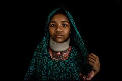 0013_acid-attack-survivor_20130314_7736 (Zoriah) Tags: pakistan portrait color face cambodia acid victim attack photojournalism documentary burn crime bangladesh survivor reportage photojournalist disfiture