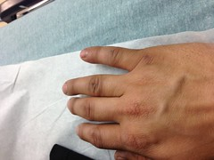 Snapped Into Place (juan.monroy) Tags: finger injury softball pinkie opendislocation