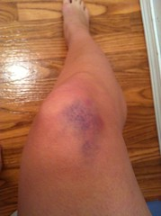 Beauty bruise (eileendodie) Tags: ouch leg like gross bruise porthardy eww uploaded:by=flickrmobile flickriosapp:filter=nofilter
