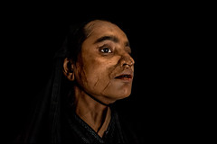 0008_acid-attack-survivor_20130314_7773 (Zoriah) Tags: pakistan portrait color face cambodia acid victim attack photojournalism documentary burn crime bangladesh survivor reportage photojournalist disfiture