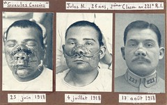 """Gueules Casses"" (Broken faces) ( drakegoodman ) Tags: hospital private soldier wounded patient worldwarone ww1 greatwar firstworldwar combatant reconstruction worldwar1 wia casualty frenchman shrapnel disfigured poilu rppc infantryman"