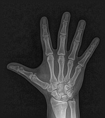 Radiograph: Logan's Hand (volkspider) Tags: blackandwhite monochrome hand fingers palm xray wrist logan radiology radiography radiograph